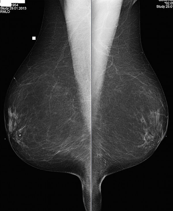 Frauenarzt J Kinnling In Duisburg Brustdiagnostik